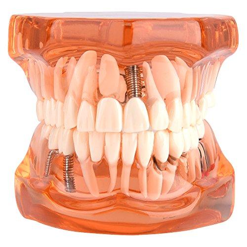 Implant Dentaire ▷ Test – TOP produit de l'année